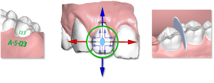 Maestro3d.dental.studio.virtual.setup.module.promo1.png