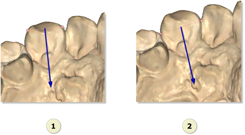 Maestro3d.dental.studio.mesio.distal3.png