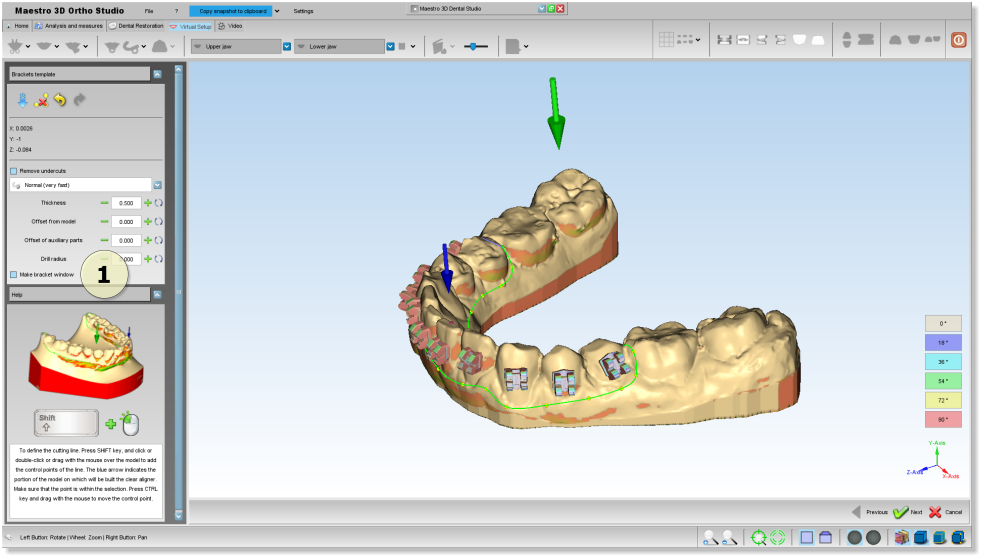 Maestro3d.dental.studio.clear.aligner.brackets.template1.png
