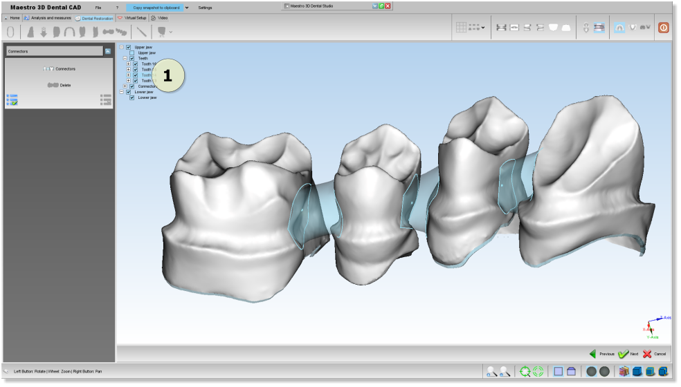 Maestro3d.dental.studio.dental.cad.connector2.png