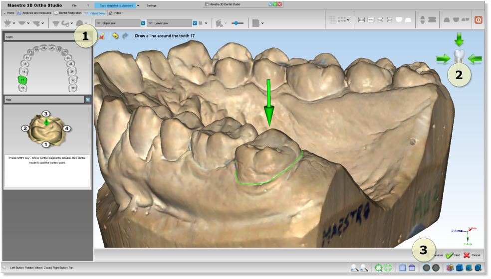 Maestro3d.dental.studio.segmentation2.png