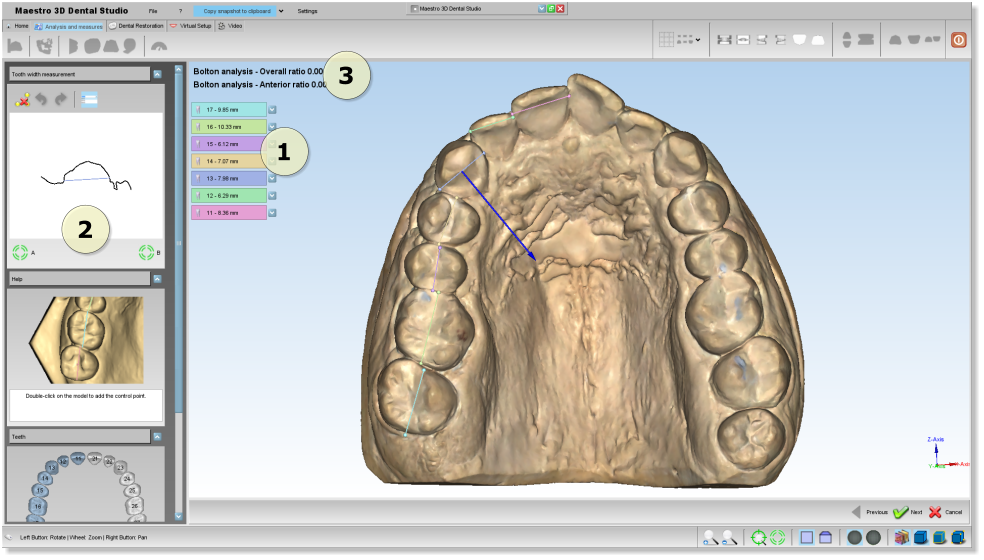 Maestro3d.dental.studio.mesio.distal2.png