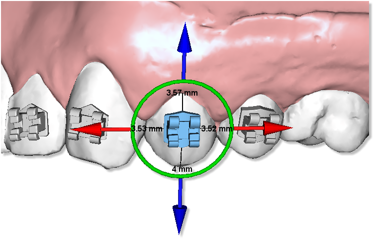 Maestro3d.dental.studio.brackets5.png