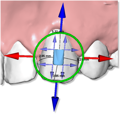 Maestro3d.dental.studio.virtual.setup.attachment.sample.png