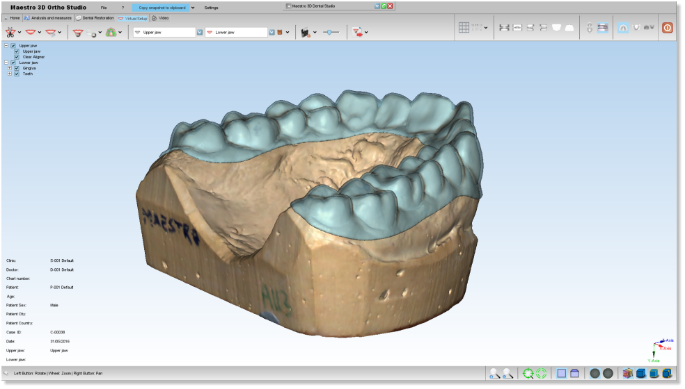 Maestro3d.dental.studio.clear.aligner2.png