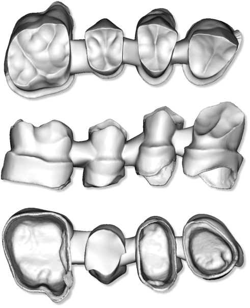 Maestro3d.dental.studio.dental.cad.merge2.png