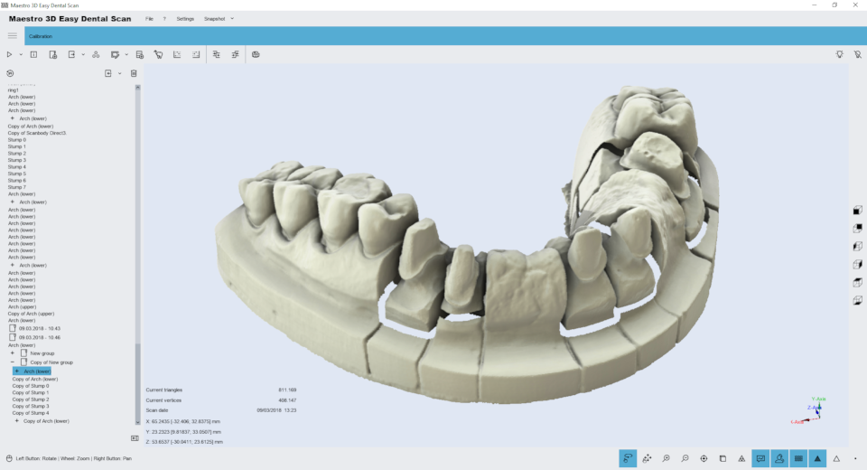 Maestro3d.easy.dental.scan.wizard.align.stumps4.png