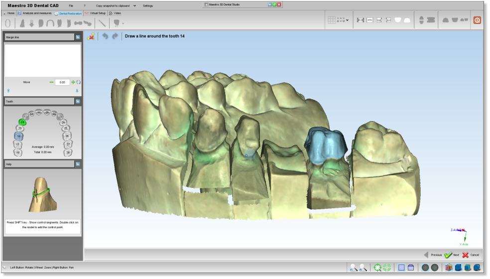 Maestro3d.dental.studio.dental.cad.marginline1.png