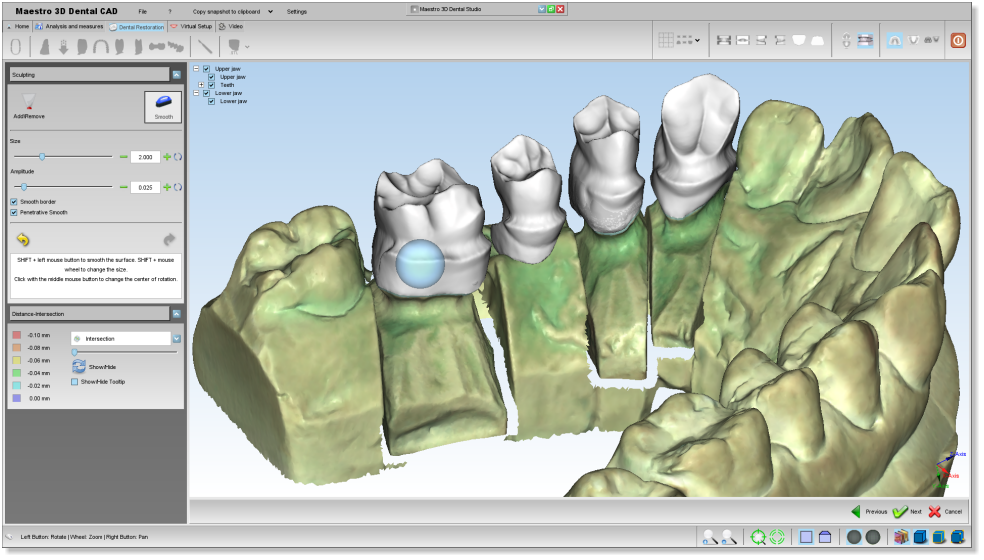 Maestro3d.dental.studio.dental.cad.shrink3.png