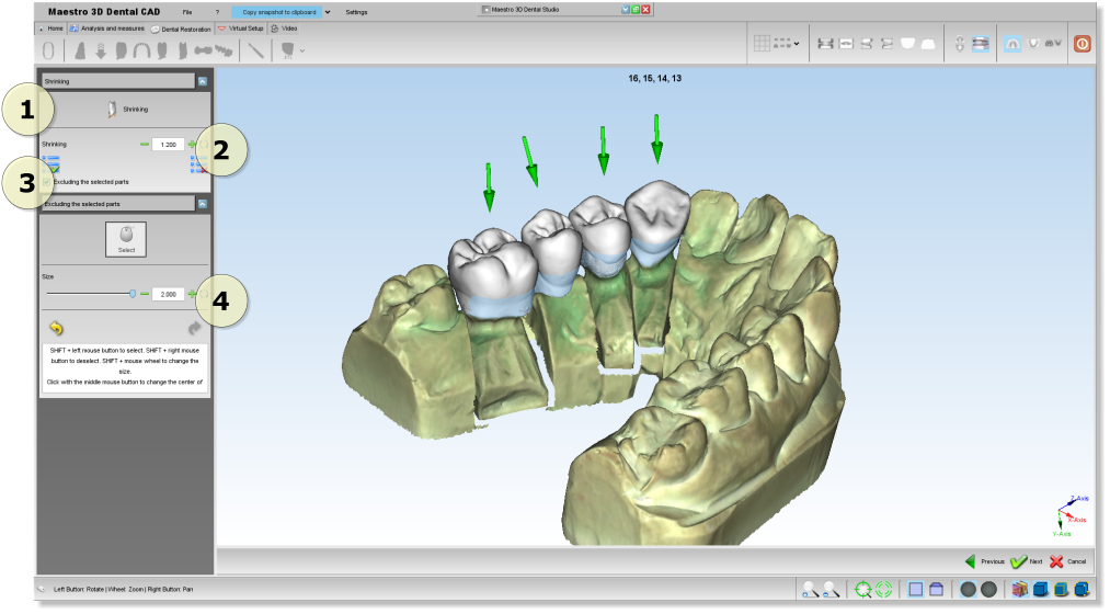 Maestro3d.dental.studio.dental.cad.shrink1.png
