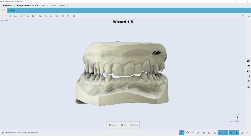 Maestro3d.easy.dental.scan.wizard.ortho2.png