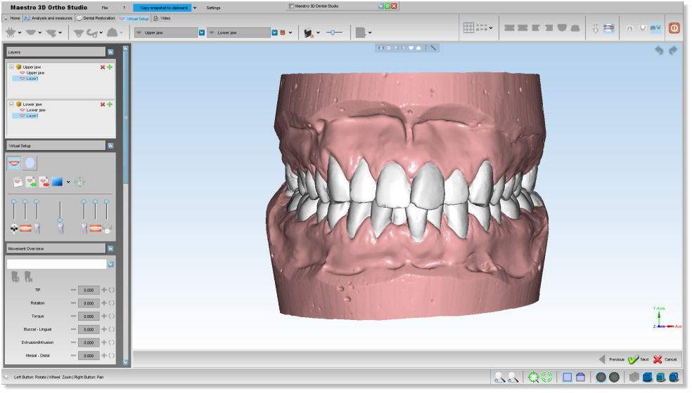 Maestro3d.dental.studio.virtual.setup2.png