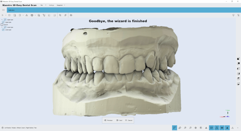 Maestro3d.easy.dental.scan.wizard.ortho5.png