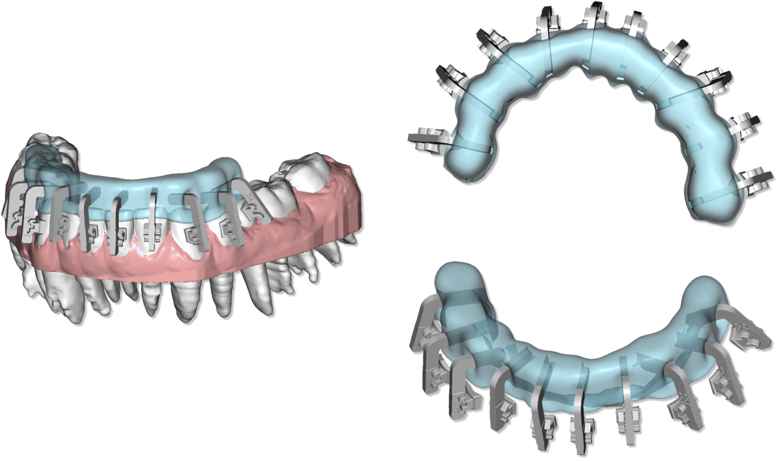 Maestro3d.dental.studio.clear.aligner.jig.template3.png