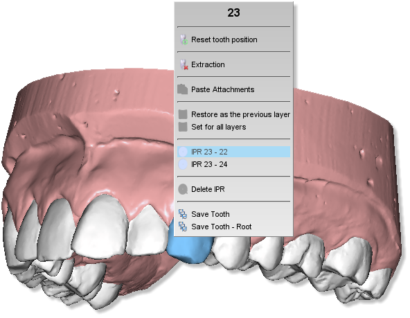 Maestro3d.dental.studio.virtual.setup.IPR1.png