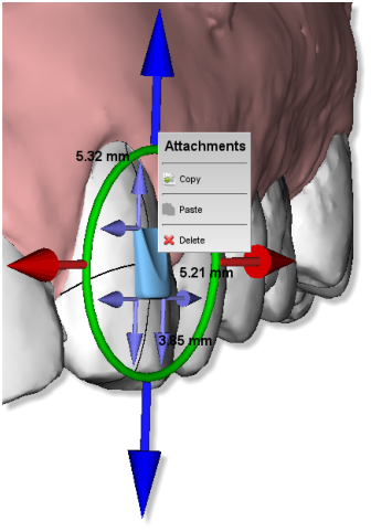 Maestro3d.dental.studio.virtual.setup.attachment.menu.png