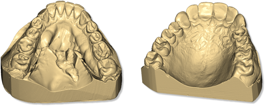 Maestro3D.Easy.Dental.Scan.taget.object.upper.lower.jaw.png