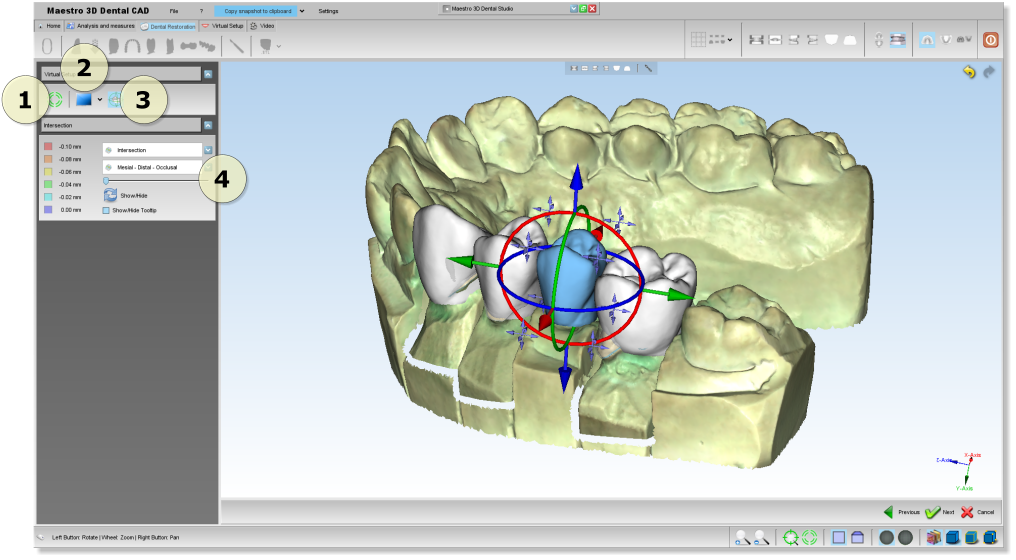 Maestro3d.dental.studio.dental.cad.teeth.placement1.png