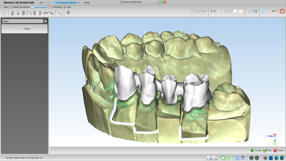 Maestro3d.dental.studio.dental.cad.merge1.png