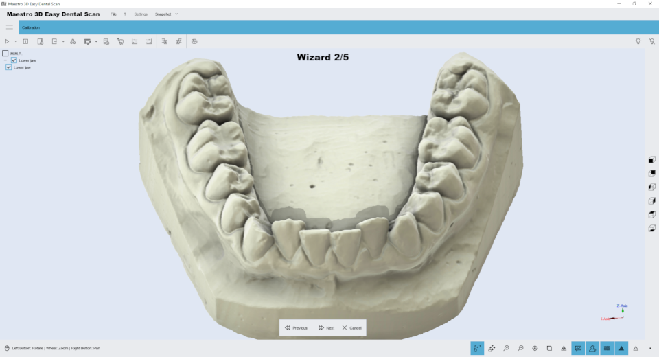 Maestro3d.easy.dental.scan.wizard.ortho3.png