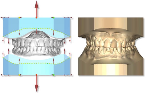 Maestro3d.dental.studio.basic.module.promo1.png