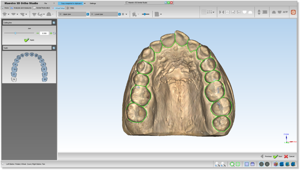 Maestro3d.dental.studio.segmentation3.png