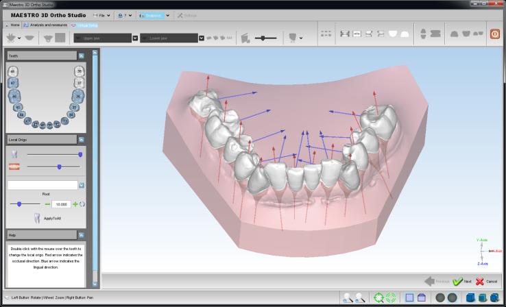 J Cole Crooked Smile Maestro 3D Dental Scan...