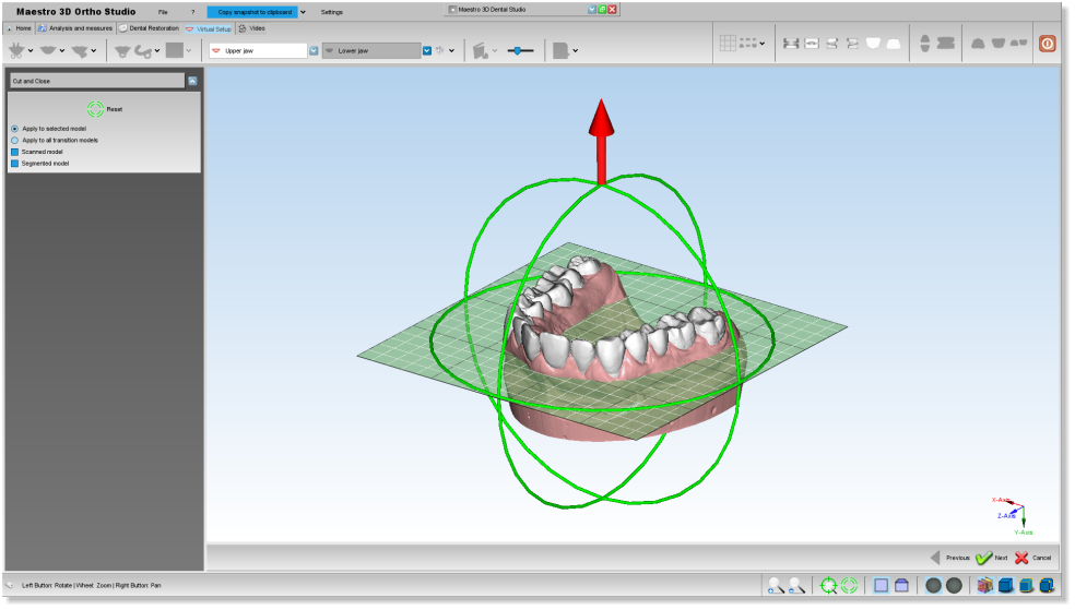 Maestro3d.dental.studio.cut.close.plane1.png
