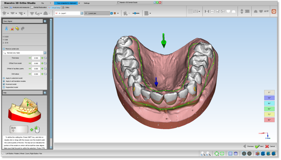 Maestro3d.dental.studio.clear.aligner1.png