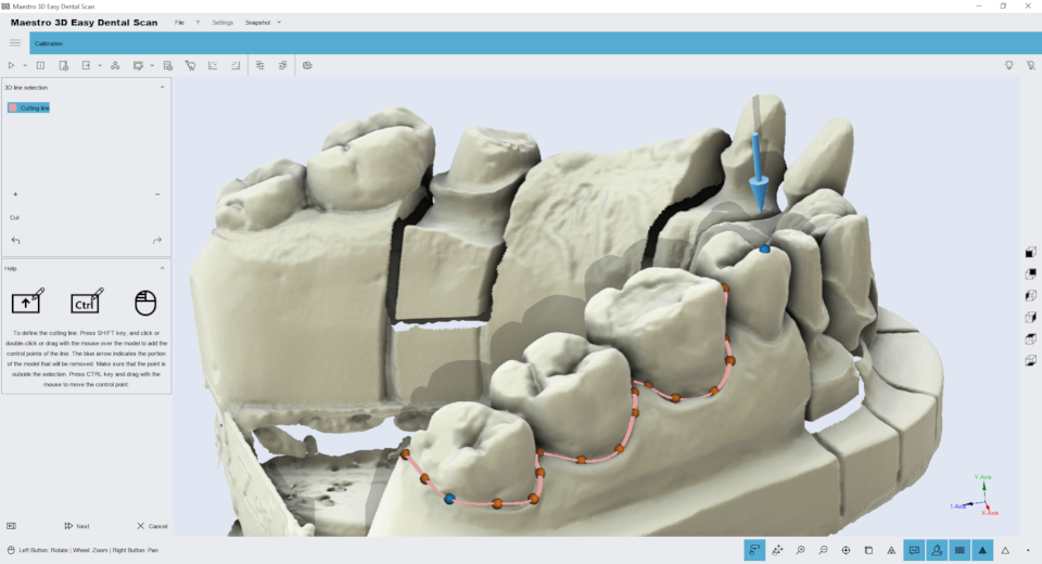 Maestro3d.easy.dental.scan.edit.with.polyline1.png