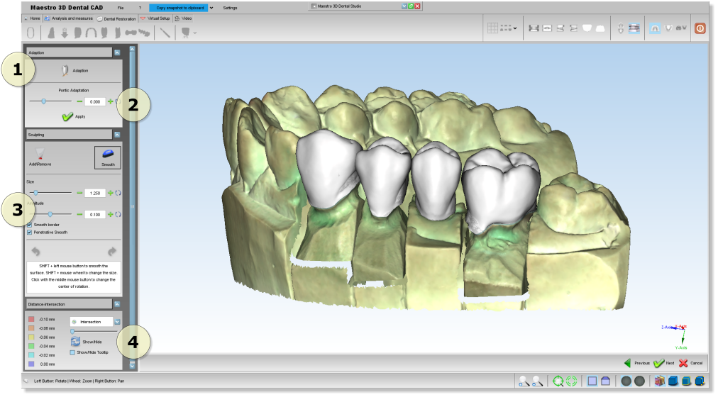 Maestro3d.dental.studio.dental.cad.adaption1.png