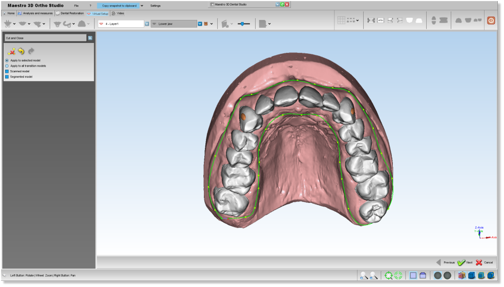 Maestro3d.dental.studio.cut.close.polyline1.png