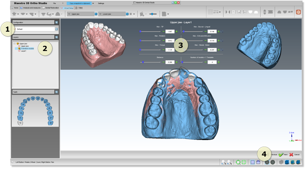 Maestro3d.dental.studio.models.builder2.png