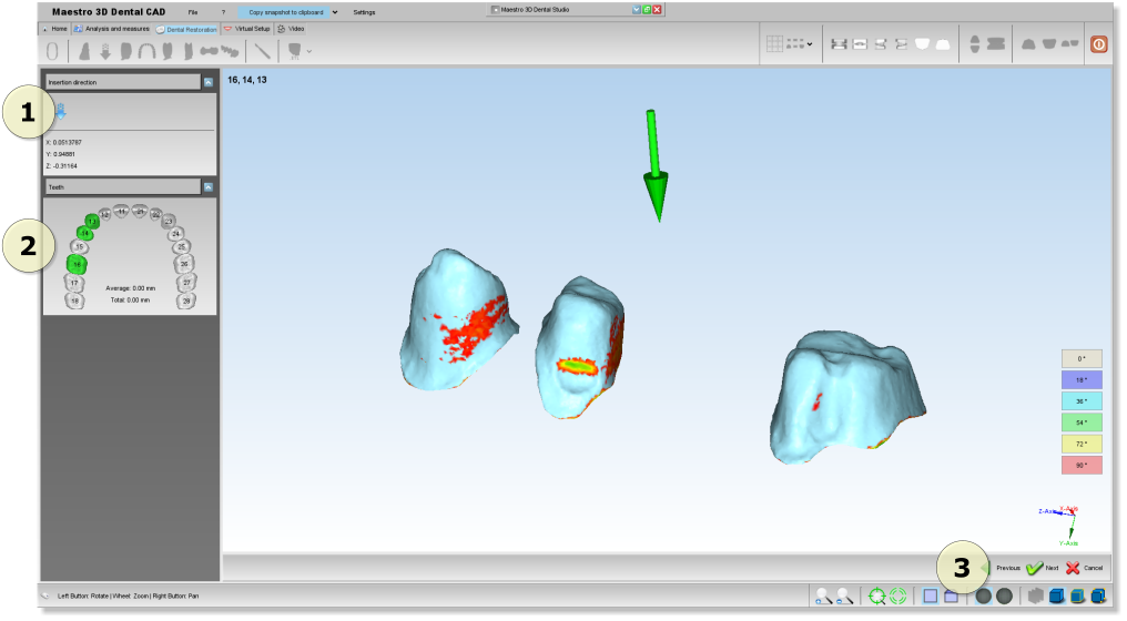 Maestro3d.dental.studio.dental.cad.insertion.direction.png