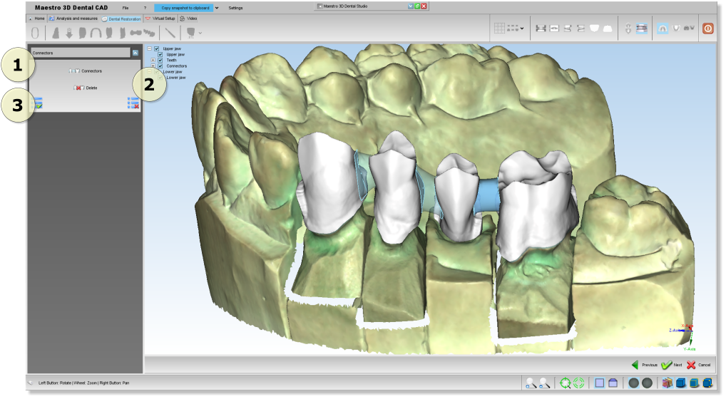 Maestro3d.dental.studio.dental.cad.connector1.png