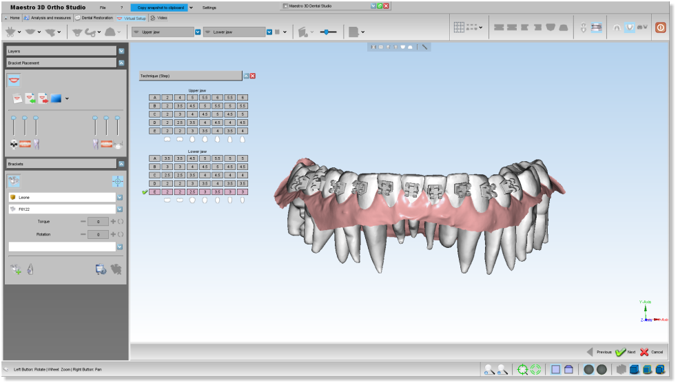 Maestro3d.dental.studio.brackets2.png