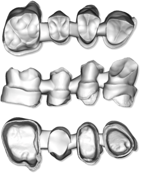 Maestro3d.dental.studio.dental.CAD.module.promo1.png