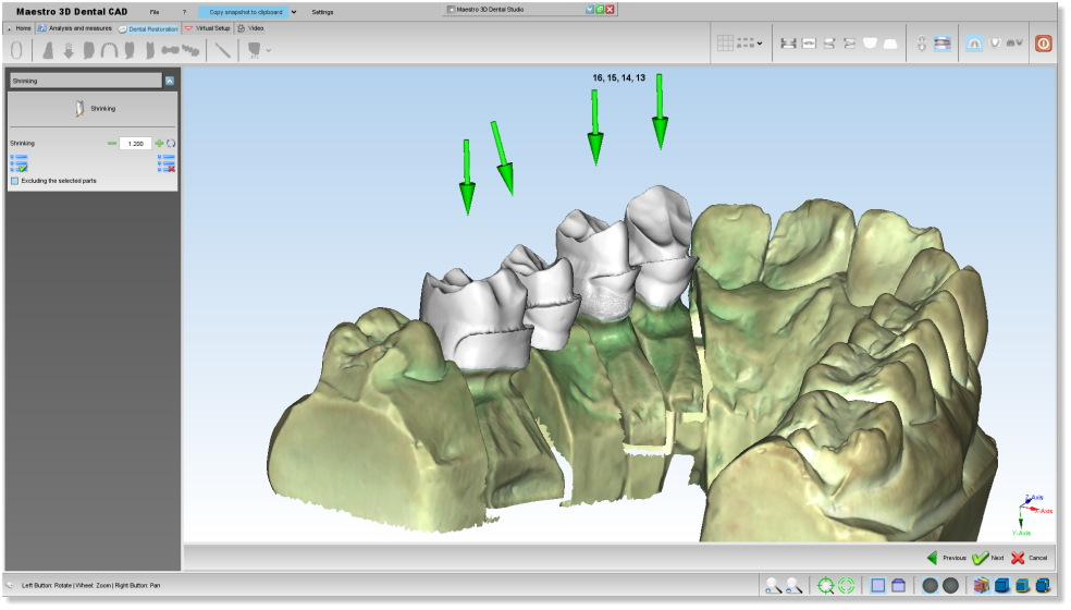 Maestro3d.dental.studio.dental.cad.shrink2.png