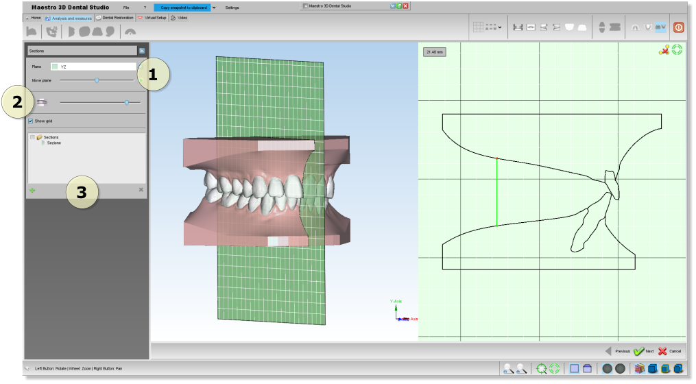 Maestro3d.dental.studio.section2.png