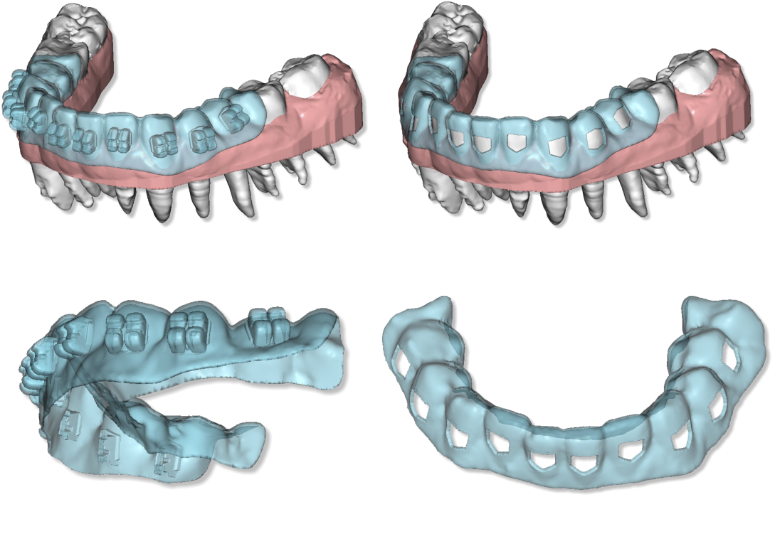 Maestro3d.dental.studio.clear.aligner.brackets.template2.png