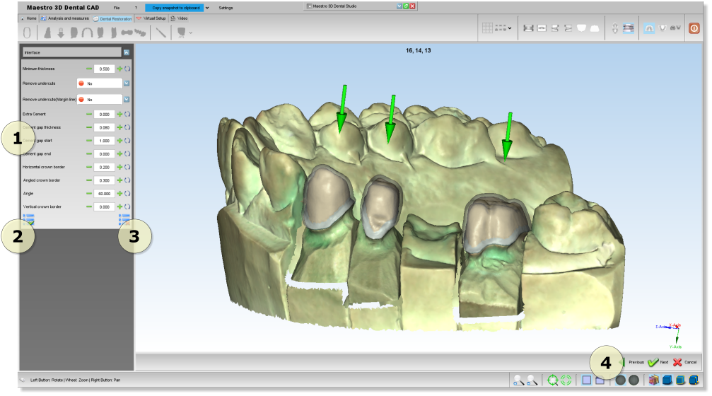 Maestro3d.dental.studio.dental.cad.interface1.png